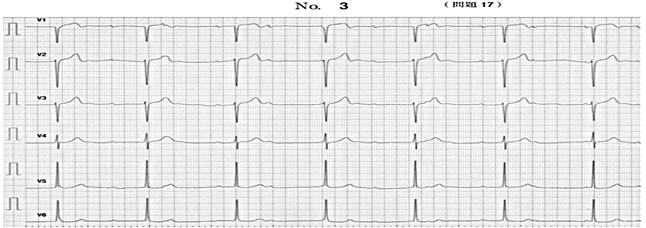 第66回 午後 問17の心電図画像
